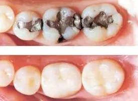 Composite fillings vs. silver fillings